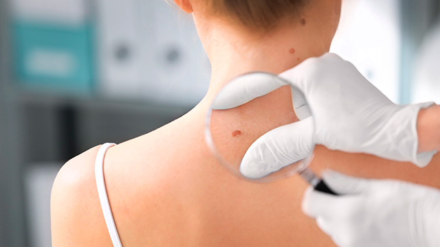 Dicas-Uteis-Como-prevenir-manchas-na-pele
